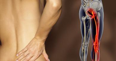 Sciatica: a pain in the backside